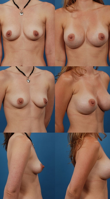 Breast Augmentation – Case 12