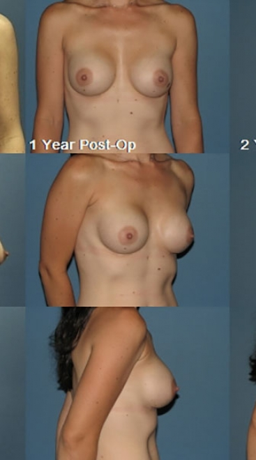 Breast Augmentation – Saline Case A