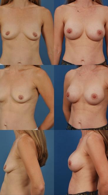 Breast Augmentation- Case 37