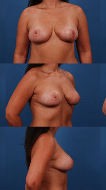 Breast Lift with Placement of Supportive Scaffold- Case C