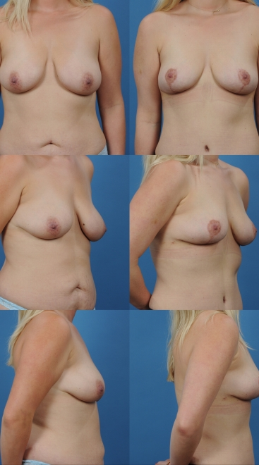 Mastopexy with Supportive Scaffold and Fat Transfer- Case G