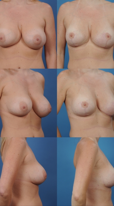 Revision Breast Augmentation- Case 1