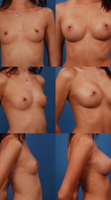 Breast Augmentation – Asymmetry Case E