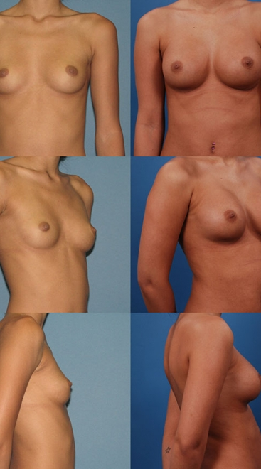 Breast Augmentation – Asymmetry Case G