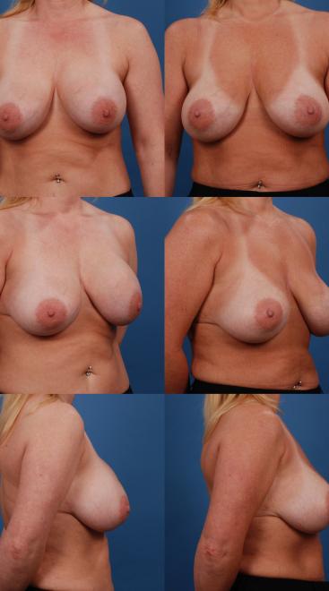 Implant Exchange with Capsulectomy- Case 9