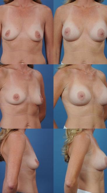 Breast Augmentation- Case 10