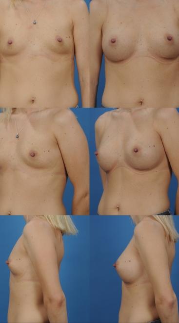 Breast Augmentation- Case 41
