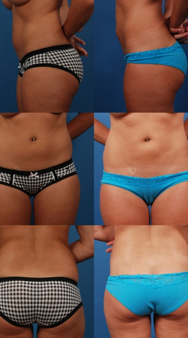 Liposuction Case A