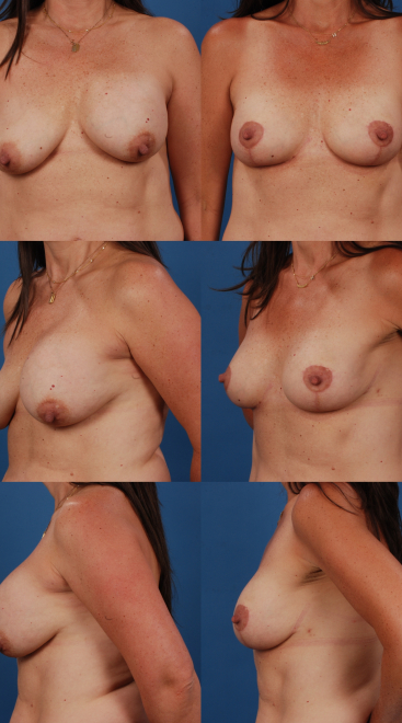 Implant Exchange with Capsulectomy and Breast Lift- Case 8