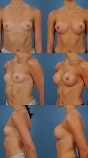 Breast Augmentation- Case 32