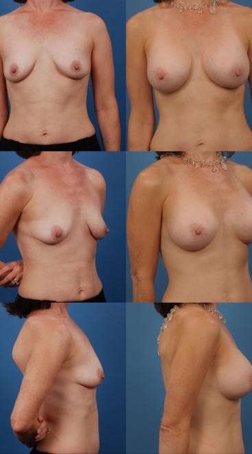 Breast Augmentation- Case 48