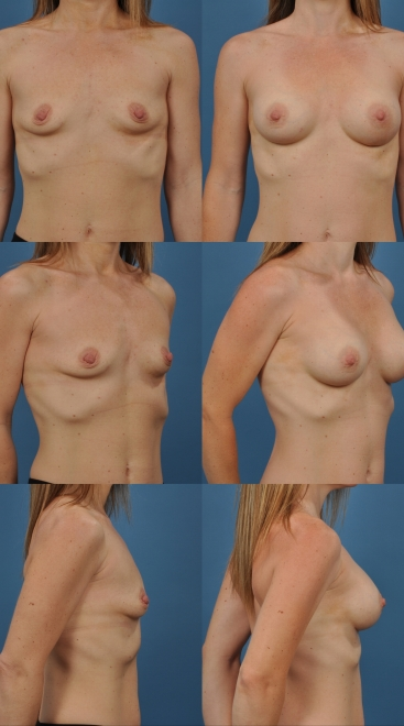 Breast Augmentation- Case 30