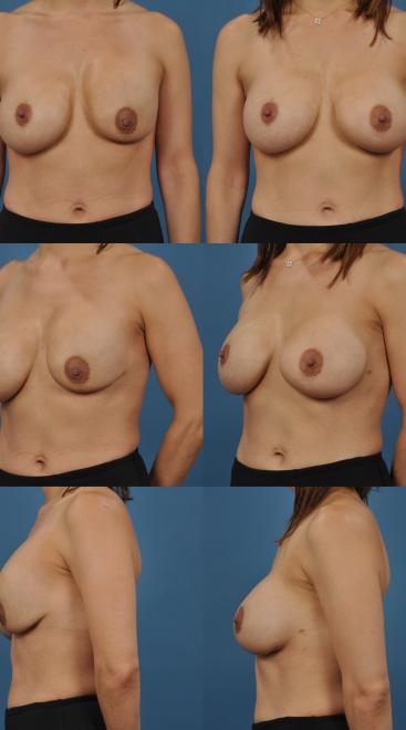 Implant Exchange with Capsulectomy- Case 3