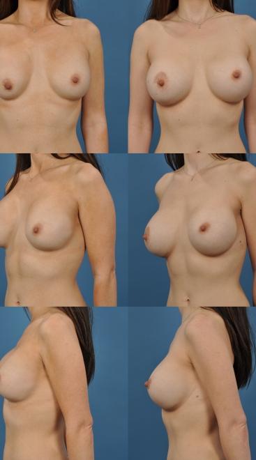 Breast Augmentation Revision- Case 6