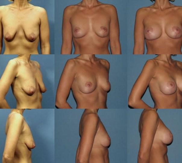 2 Stage Augmentation/Mastopexy Case A