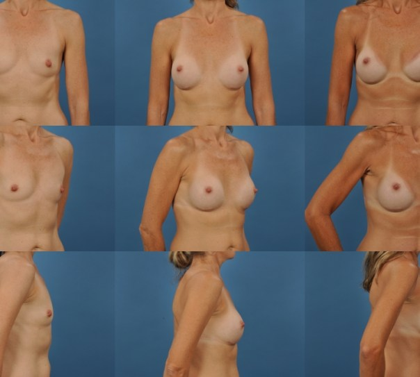 Breast Augmentation- Case 31