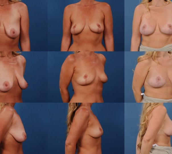 Staged Breastlift and Augmentation- Case I