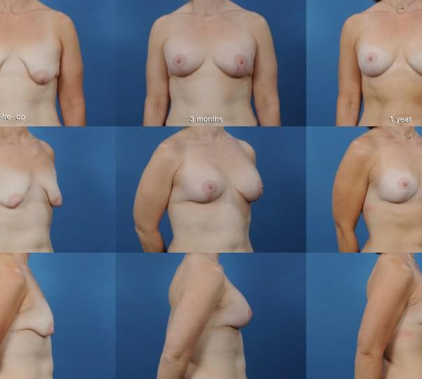 Augmentation with Breast Lift and Placement of Supportive Mesh- Case 2