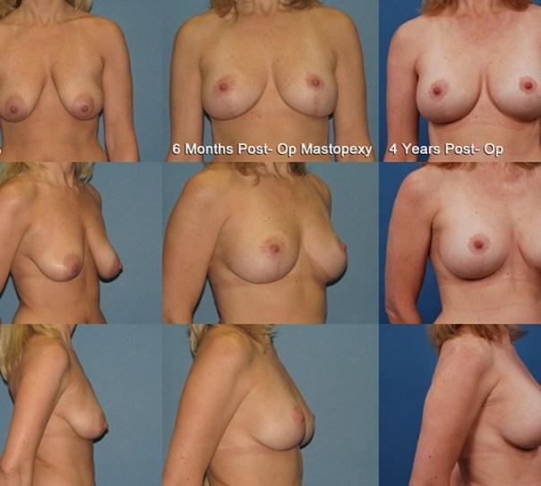 2 Stage Augmentation/Mastopexy Case C