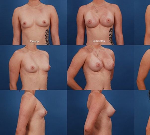 Breast Augmentation – Case 23