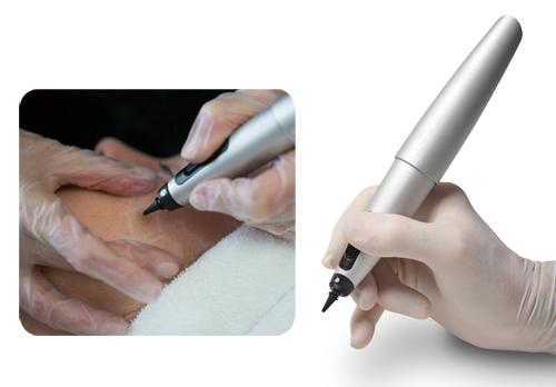 「新型冷凍筆」解決眼周肌膚顆粒 - Dr.BEAUTY醫美時尚 整形醫美診所推薦 幹細胞 醫學美容