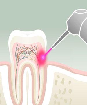 Le Laser Dentaire Du Cabinet Dentiste Boulogne Billancourt