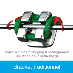 FR-DamonClear_BracketImages-traditional