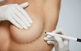 Small Scar Breast Augmentation