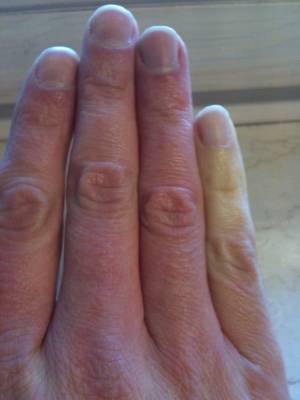 raynaud syndrom