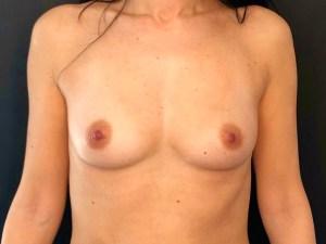 poitrine chirurgie esthétique montpellier