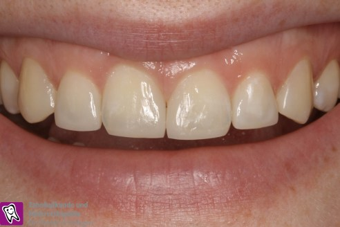 Zahnumformung und Zahnverbreiterung