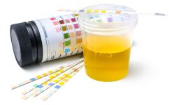 artificial urine