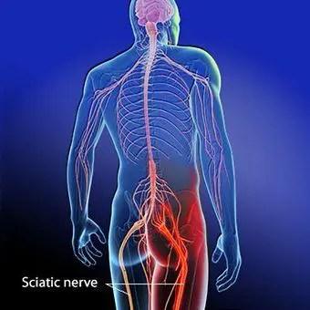 Ajuda o ciático que comprimido nervo um