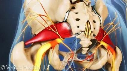 Pain Piriformis Muscle