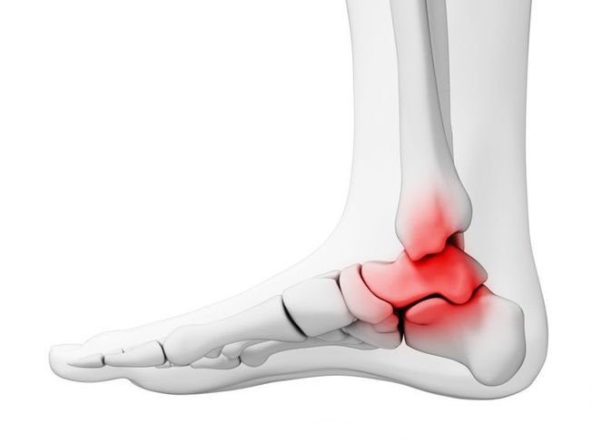 Blog picture of Ankle Arthritis