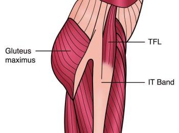 TFLとITB解剖図 - エルパソカイロプラクティック