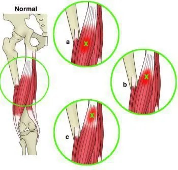 Anatomical Site of Muscle Injury - El Paso Chiropractor