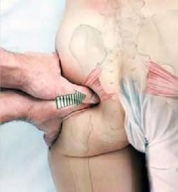 Causas del masaje piriforme del síndrome de Piriformis