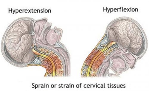 Diagrama latigazo cervical - El Paso Quiropráctico
