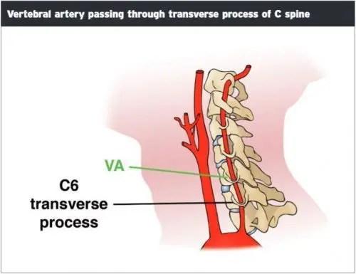 Vertebral Artery Passing Transverse Process - El Paso Chiropractor