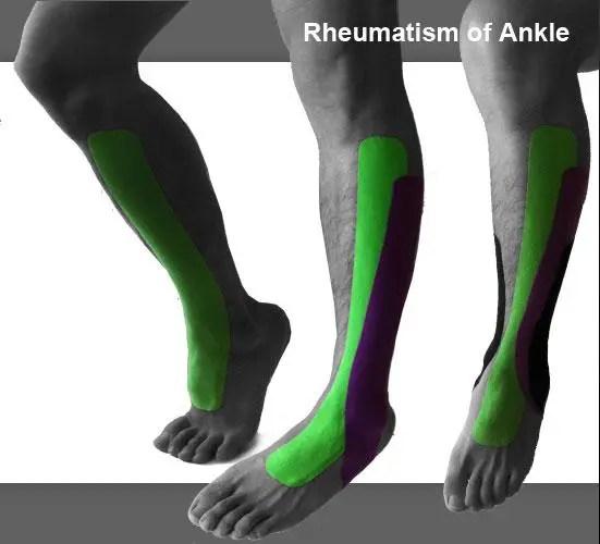 blog de imágenes de las espinillas y los pies con kinesiotape masculinos aplicada a la rodilla a pie y el tobillo