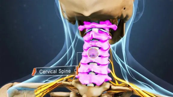 blog picture of anatomical cervical spine vertebrae