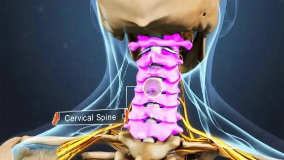 blog picture of anatomical cervical spine vertebrae