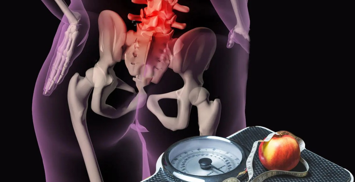 el blog ejemplo de persona con sobrepeso con dolor de espalda y la escala con la manzana en la parte superior