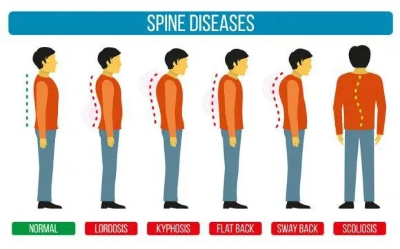 spinal abnormalities that chiropractic can help el paso tx.