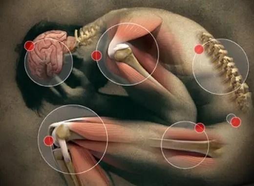 fű közös fájdalmai hűtőgélek ízületi fájdalmak kezelésére