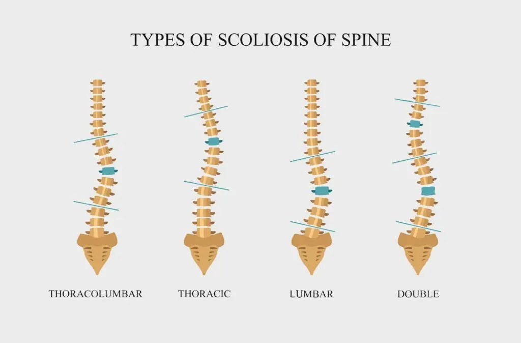 types of scoliosis of spine