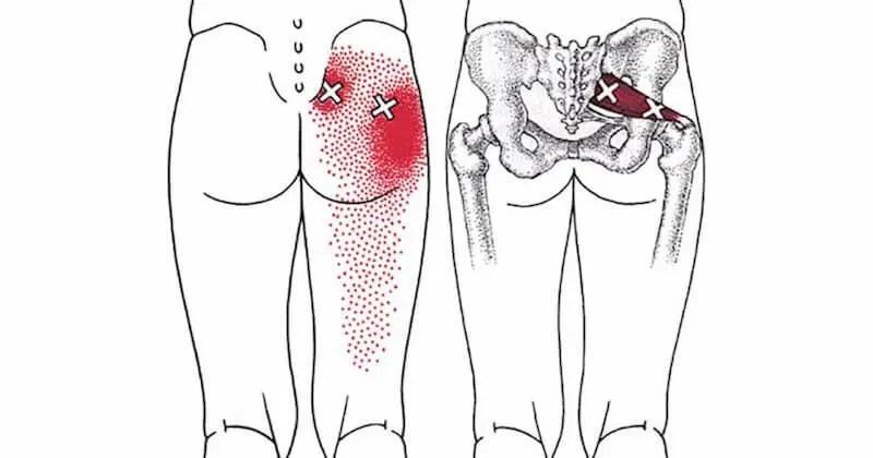 piriformis stretches sciatica