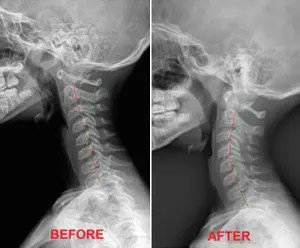 Before and After Treatment - El Paso Chiropractor