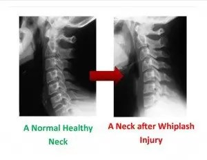 Before and After Whiplash - El Paso Chiropractor